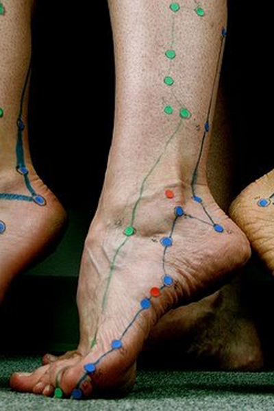 Ankle - Foot - Plantar Fascitis